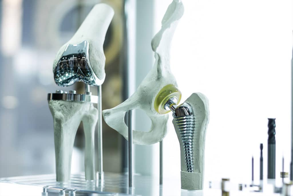 3D hip prosthesis